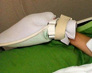ミトン型の手袋をはめられ、ベッドの柵に固定された入居者の右腕。入居者によってはヘルパーへの「週間サービス指示書」に「24h(時間)両手ロック」とある。厚生労働省は最小限の時間にとどめるなどの要件を満たせば例外的に身体拘束が許される場合もあるとするが、入居者は常時この状態にされているという