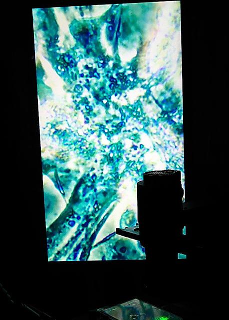 BCLの展示「ゴースト・イン・ザ・セル」。拡大して映し出された心筋細胞=金沢21世紀美術館