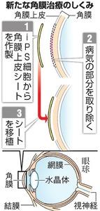 新たな角膜治療のしくみ