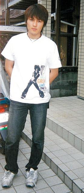 20歳でがんと診断された頃の広田さん=2003年、本人提供