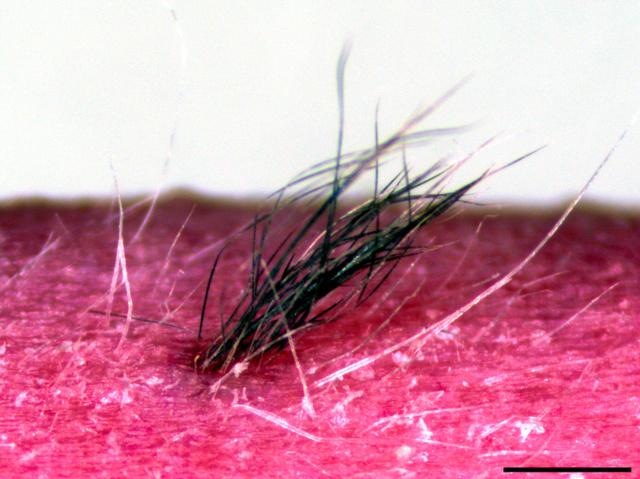iPS細胞からつくり、マウスに移植した皮膚から生えた毛=理化学研究所提供
