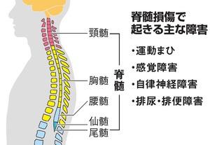 脊髄損傷で起きる主な障害