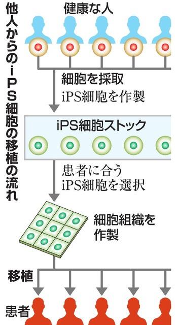 他人からのiPS細胞の移植の流れ