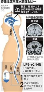 特発性正常圧水頭症とは…
