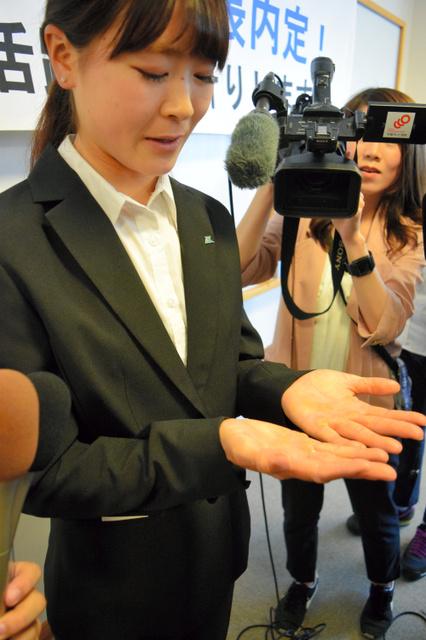 報道陣の求めに応じて練習でできた両手のマメを見せる冨田さん=4日、米子市両三柳