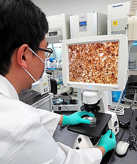 治験を目指した準備のため、他人のiPS細胞から作った網膜の組織を確認する大日本住友製薬の研究員=神戸市