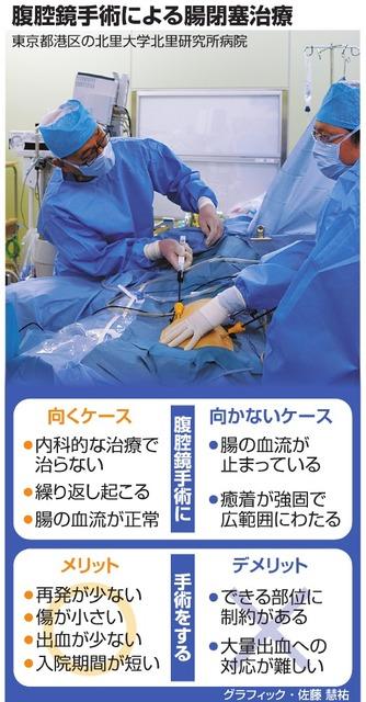腹腔鏡手術による腸閉塞治療
