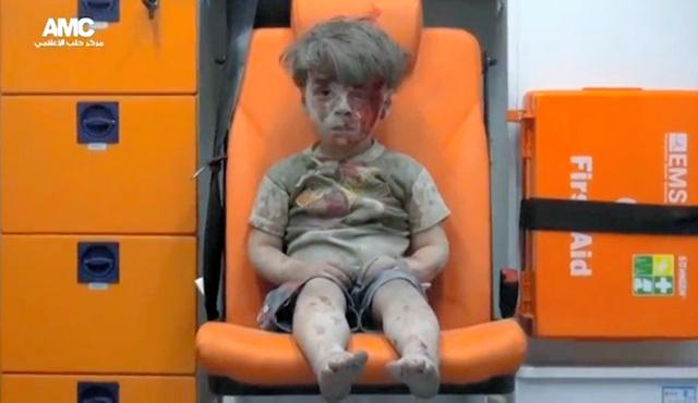 シリア北部のアレッポで17日に撮影されたとされる映像が、SNSに投稿された。空爆の後、血まみれになった顔の男の子が救急車の椅子にぼうぜんと座っている=ロイター