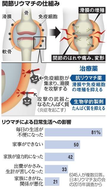 関節リウマチの仕組み/リウマチによる日常生活への影響