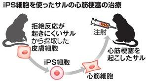 iPS細胞を使ったサルの心筋梗塞の治療