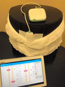 排尿を予知する「DFree」。排泄のタイミングをタブレットなどに通知する=トリプル・ダブリュー・ジャパン提供