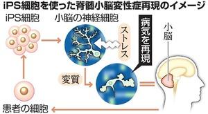 iPS細胞を使った脊髄小脳変性症再現のイメージ