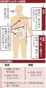 消化管アレルギーの症状/主な治療法
