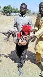 誤爆で負傷した子どもを運ぶ男性。国境なき医師団提供=AP