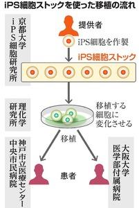 iPS細胞ストックを使った移植の流れ