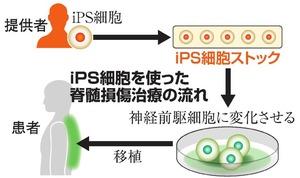 iPS細胞を使った脊髄損傷治療の流れ