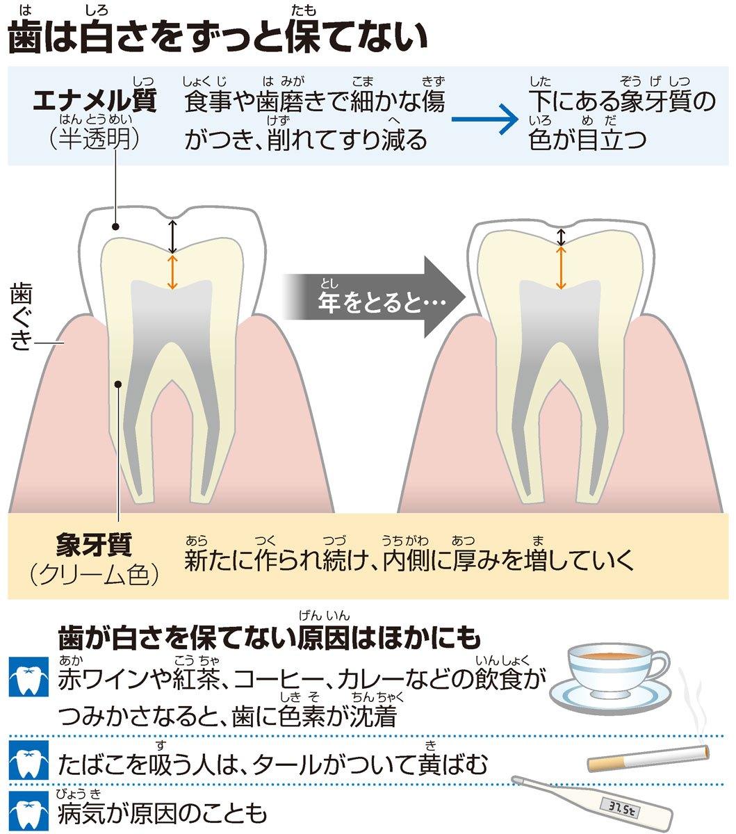 歯(は)は白(しろ)さをずっと保(たも)てない/歯が白さを保てない原因(げんいん)はほかにも