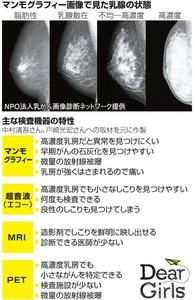 マンモグラフィー画像で見た乳腺の状態