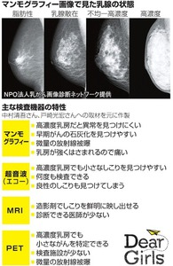 マンモグラフィー画像で見た乳腺の状態/主な検査機器の特性