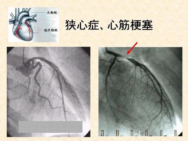 急性冠症候群で高度に狭窄した心臓冠動脈の血管造影写真=岩岡秀明さん提供