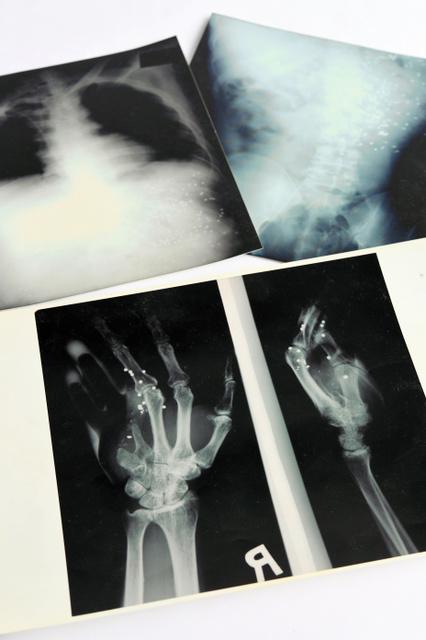 犬飼記者の手(手前)と、小尻知博記者の腹部などのエックス線写真。白い点は散弾粒=兵庫県西宮市、水野義則撮影