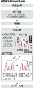 歯周病治療の主な進め方