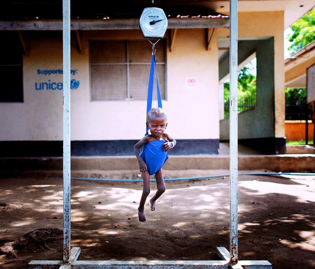 ジュバ市内のアル・サバ病院にやってきた1歳3カ月のマリト・アダトちゃん。栄養失調で腕と足がやせ細っていた。診察のため、看護師に抱かれ、体重計につり下げられた=いずれも24日、杉本康弘撮影