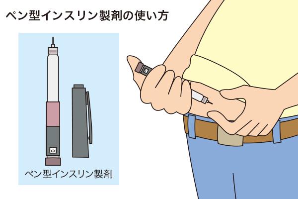 (イラスト・シマダユミコ)