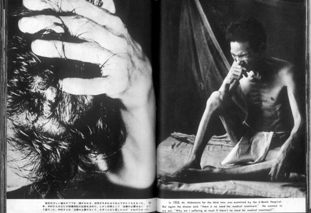福島菊次郎写真集「ピカドン」から。激しい痛みに苦しむ中村杉松さん