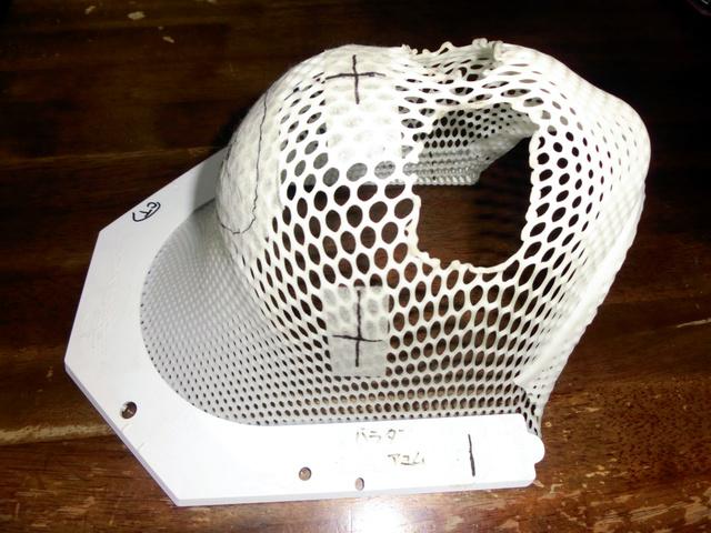 局所放射線治療では、位置がずれないようにマスクをつくって顔を固定して治療した