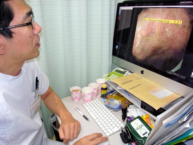 内視鏡画像を見る多田智裕医師=さいたま市南区