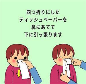 鼻水スルスル