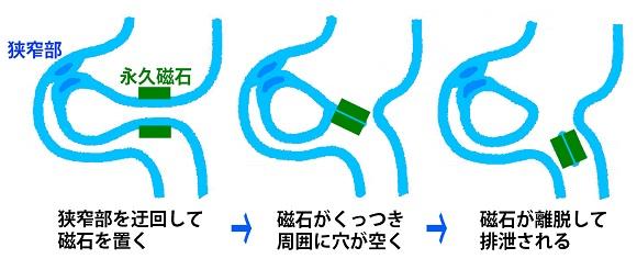 磁石を使った治療法のイメージ