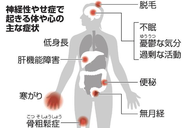 神経性やせ症で起きる体や心の主な症状