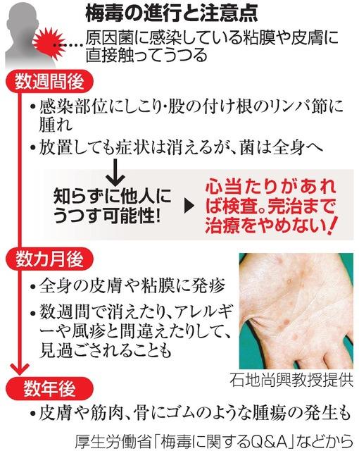 梅毒患者、増加の一途 若い女性の感染が増加:朝日新聞デジタル