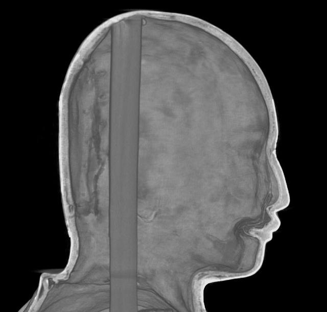 舎利弗像の頭部のCT画像。完成した像は口を閉じているが、その内側にみえる原型では口が開いている(興福寺提供)