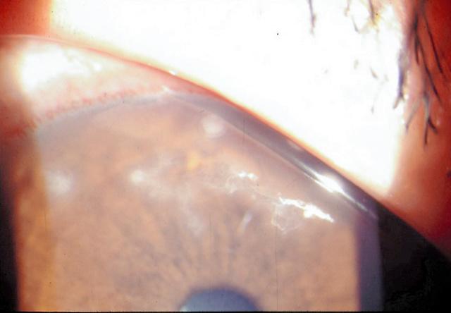 角膜の表面に濁りがみられる上皮型単純ヘルペスウイルス角膜炎=弘前大学提供