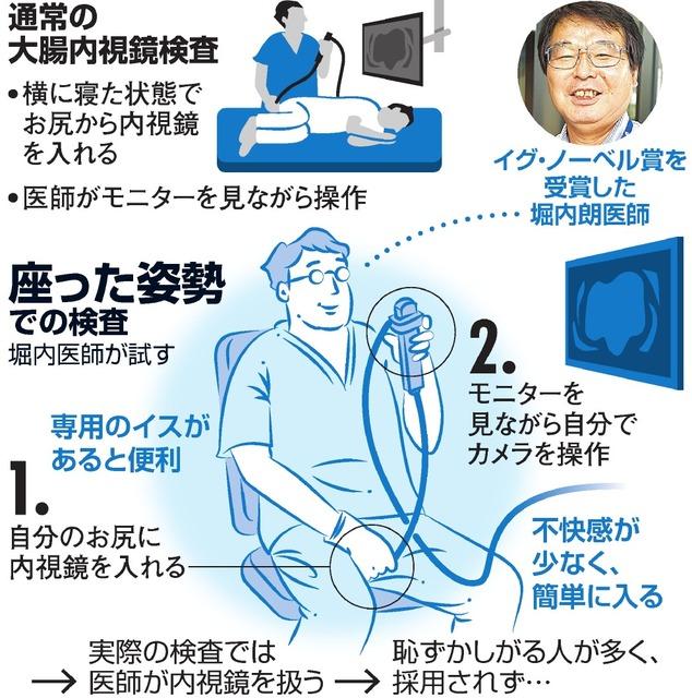 通常の大腸内視鏡検査と座った姿勢での検査のイメージ