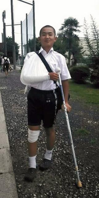 野球ひじの手術を受けた後、松葉杖を使って学校に通った石川勝之進さん=家族提供