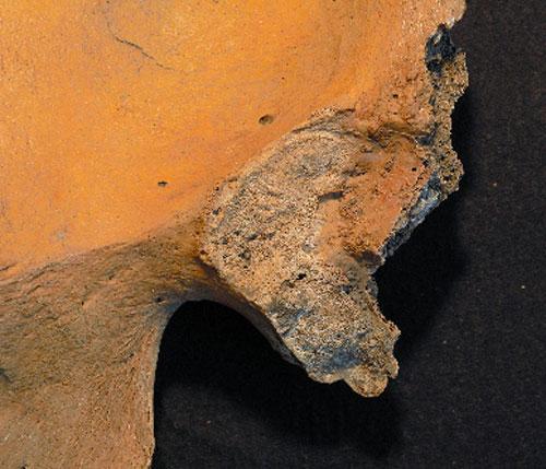 写真:年をとった人の腸骨耳状面は表面がざらざらしている(長岡朋人さん提供)