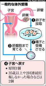 図:一般的な体外受精の流れ