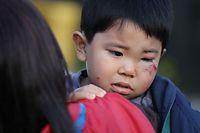 就寝中にタンスが倒れ、顔を負傷したという3歳の男の子=15日午前6時8分、熊本県益城町、長島一浩撮影