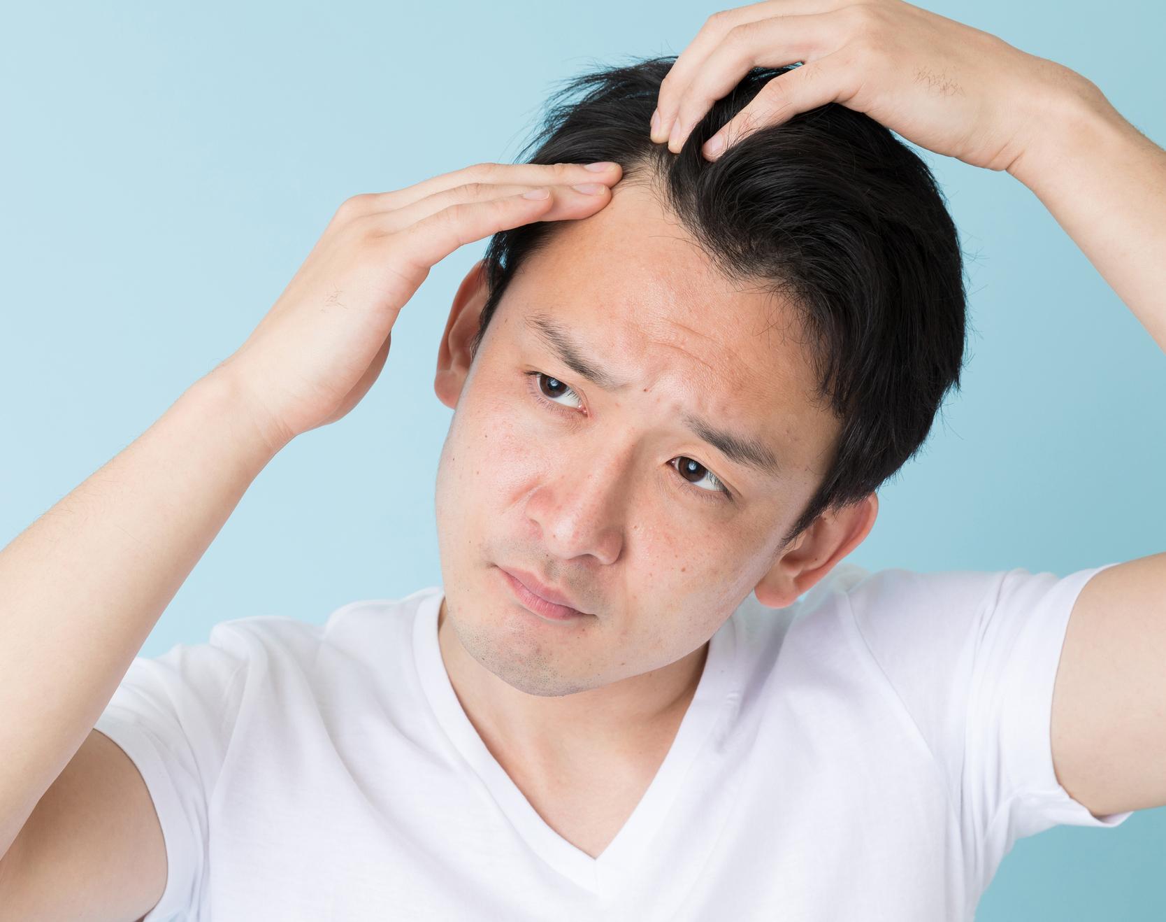 薄毛、抜け毛、生え際の後退……。発毛剤と育毛剤の違いを知って、正しいケアを!