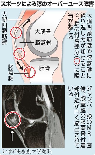 ジャンパー 膝 手術