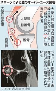 5f9f42e018 スポーツで起こる膝のオーバーユース障害:朝日新聞デジタル