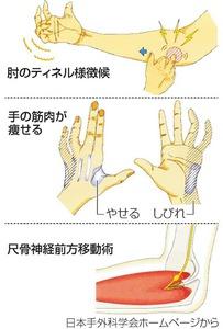 手の筋肉が痩せ、変形も 肘部管...