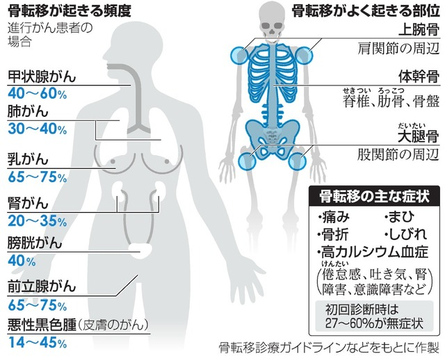 進行がんの骨転移、増える治療の...