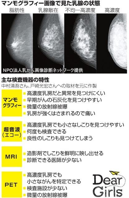 石灰 化 マンモグラフィー