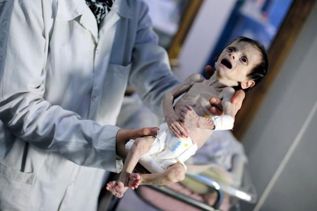 栄養失調の子ども1千人超 政権軍の包囲地区 シリア:朝日新聞デジタル