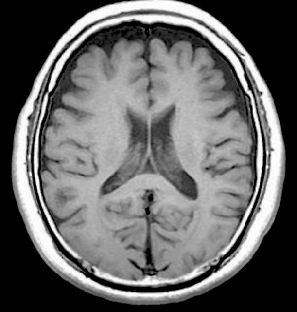 脳、加齢で萎縮…でも機能は維持 ...
